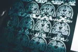 30 procent przypadków demencji można by uniknąć. Zobacz jak [Fot. Atthapon - Fotolia.com]