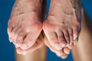 4 najczęstsze bolesne dolegliwości stóp u seniorów [Fot. tverdohlib - Fotolia.com]