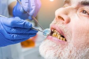 5 powodów, dla których osoby niepełnosprawne powinny szczególnie dbać o zęby [Fot. DenisProduction.com - Fotolia.com]