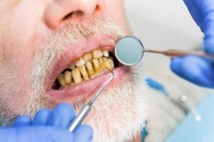 5 ukrytych wrogów zdrowych zębów [Fot. denisfilm - Fotolia.com]