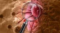 6 objawów raka, które ludzie zwykle ignorują