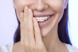 7 pyta� o prostowanie z�b�w  [© kalcutta - Fotolia.com, Ortodoncja]