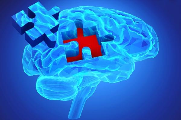 """""""Epidemia"""" demencji na świecie [Fot. goanovi - Fotolia.com]"""