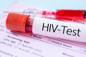 AIDS po 35 latach od odkrycia. Leczenie HIV - światełko w tunelu?  [© gamjai - Fotolia.com]