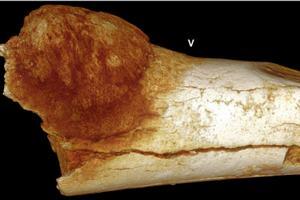 Aktywne �ycie, nieska�one jedzenie, a nowotw�r z�o�liwy i tak zaatakowa� [fot. South African Journal of Science]
