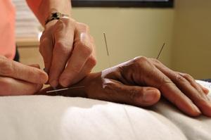 Akupunktura pomocna w leczeniu depresji? [© John Keith - Fotolia.com]
