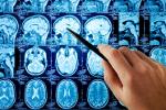 Alzheimer wyniszcza ekspresowo [© Tryfonov - Fotolia.com]