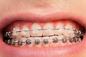 Aparaty ortodontyczne dla dorosłych: jak wybrać właściwy? [© Sergey Novikov - Fotolia.com]