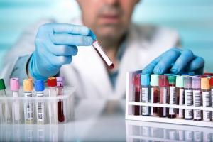 Badania profilaktyczne a wiek - jakich testów szczególnie potrzebujesz w danej dekadzie życia [Fot. angellodeco - Fotolia.com]