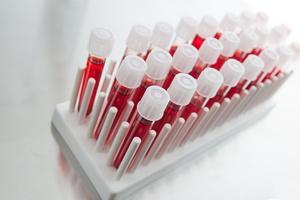 Badanie krwi pomoże zdiagnozować chorobę Alzheimera [© mario beauregard - Fotolia.com]