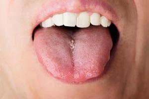 Boli Cię język? To może być zapalenie błony śluzowej [Fot. Andrey Popov - Fotolia.com]