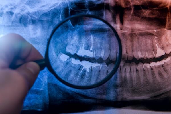 Boli cię ząb? Winny może być zębiniak! [Fot. alfexe - Fotolia.com]