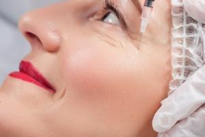 Botoks czy kwas hialuronowy - co lepiej odmładza? [Fot. YakobchukOlena - Fotolia.com]