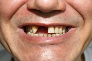 Brak jednego zęba = wiele problemów [Fot. irinaorel - Fotolia.com]