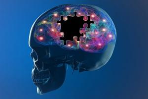 Choroba Alzheimera atakuje również młodych [© Naeblys - Fotolia.com]