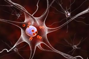 Choroba Parkinsona zwiększa ryzyko różnych nowotworów? [Fot. Kateryna_Kon - Fotolia.com]