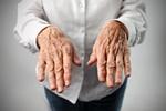 Choroba zwyrodnieniowa stawów - jak walczyć z bólem? [© olly - Fotolia.com]