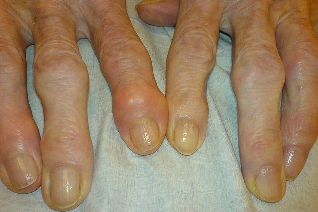 Choroba zwyrodnieniowa stawów sprzyja osamotnieniu [fot. Drahreg01, CC BY-SA 3.0, Wikimedia Commons]