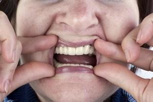 Choroby dziąseł mają wpływ na rozwój demencji [© Aleksandr Volkov - Fotolia.com]