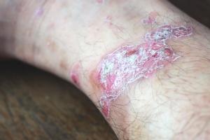 Choroby skóry [Fot. baworn47 - Fotolia.com]
