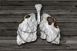Chorzy na raka p�uc pozbawieni dost�pu do nowoczesnej diagnostyki [©  freshidea - Fotolia.com, Rak p�uc]