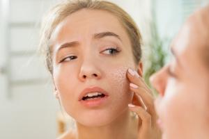 Ciągle się stresujesz? Twoja skóra jest zagrożona: sprawdź objawy [Fot. ladysuzi - Fotolia.com]