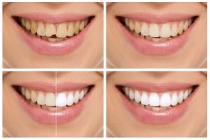 Co latem najbardziej brudzi zęby? [Fot. Stasique - Fotolia.com]