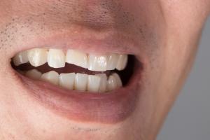 Co niszczy nasze zęby? Produkty spożywcze, które szkodzą jamie ustnej [Fot. Korn V. - Fotolia.com]