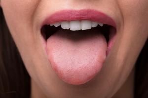 Co o zdrowiu mówi wygląd języka? [Fot. Andrey Popov - Fotolia.com]