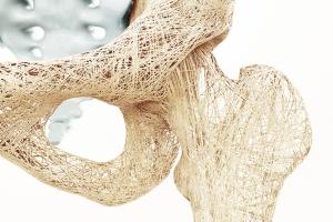 Co trzecia kobieta na świecie cierpi na osteoporozę. Jak żyć z tą chorobą? [Fot. crevis - Fotolia.com]