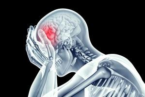 Co zrobić, aby uchronić siebie od udaru? 4 sposoby, które naprawdę warto znać [© posteriori - Fotolia.com]