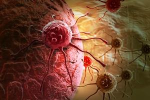 Coraz więcej przypadków raka na świecie - nowe statystyki [© vitanovski - Fotolia.com]