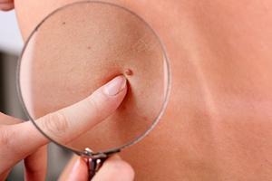 Czerniak skóry - śmiertelnie niebezpieczny, często lekceważony [© Africa Studio - Fotolia.com]