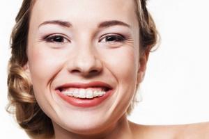 Czy po czterdziestce wypada nosić aparat ortodontyczny? [fot. Unident Union Dental Spa]