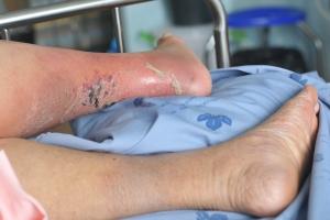 Czym jest zespÃłÅ' stopy cukrzycowej? [Fot. tpap8228 - Fotolia.com]