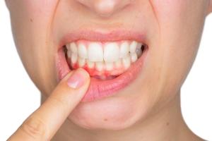 Czym karmić zęby? [Fot. Stefano Garau - Fotolia.com]