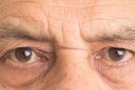 Dbaj o oczy - okulista czasem konieczny [© YellowCrest - Fotolia.com]