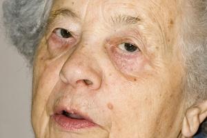 Depresja, apatia, drażliwość - wczesne oznaki demencji [© Ademoeller - Fotolia.com]