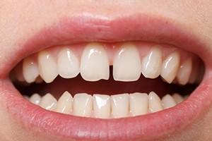 Diastema: tylko defekt kosmetyczny czy już problem zdrowotny? [Diastema, © Ocskay Bence - Fotolia.com]