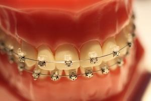 Dlaczego z�y zgryz postarza?  [fot. UNIDENT UNION Dental Spa]