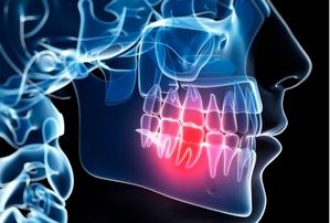 Domowe sposoby na ból zęba [fot. ból zęba]