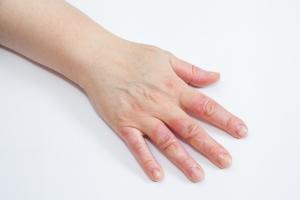 Domowe sposoby na leczenie oparzeń [Fot. misalukic - Fotolia.com]