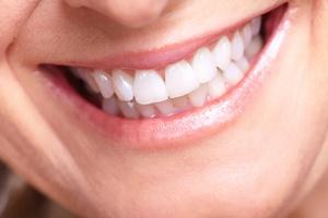 Domowe sposoby na śnieżnobiały uśmiech szkodzą zębom [© Kurhan - Fotolia.com]