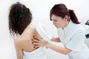 Duża liczba pieprzyków oznacza wyższe ryzyko raka piersi [© bertys30 - Fotolia.com]