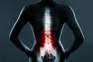 Dyskopatia: jak sobie z nią radzić i leczyć? [Fot. hamara - Fotolia.com]