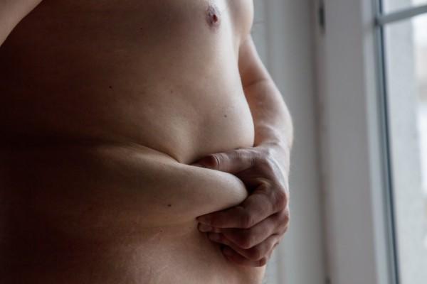 Dyskryminacja - osoby otyłe są odczłowieczane [Fot. Masson - Fotolia.com]