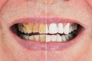 Dziąsła. Brama do zdrowia zębów [Fot. Andrey Popov - Fotolia.com]
