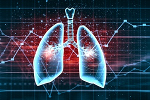 Dzień Spirometrii - sprawdź stan swoich płuc [© Sergey Nivens - Fotolia.com]