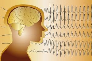 Dziś Międzynarodowy Dzień Epilepsji [© St.Op. - Fotolia.com]