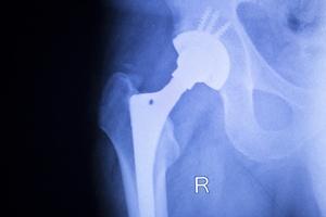 Endoproteza biodra: lek na problemy z poruszaniem si� [© edwardolive - Fotolia.com]